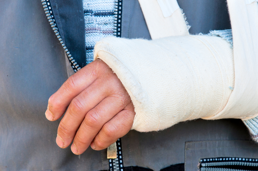 Macomb Law Group, personal injury attorneys image of a Man's arm in cast and sling